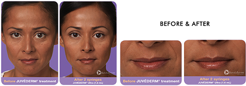 juvederm-before&after2