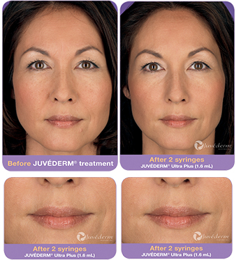 juvederm-results